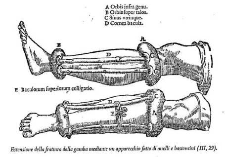 fracturas-roma